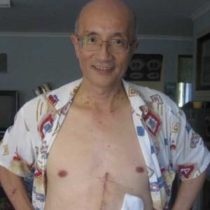 Herman - Liver Transplant Recipient